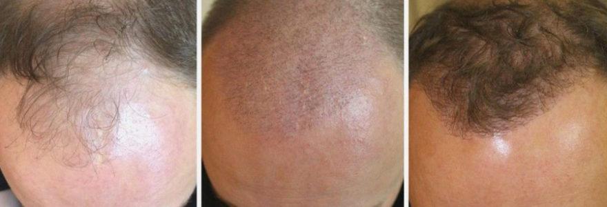 greffe de cheveux FUE